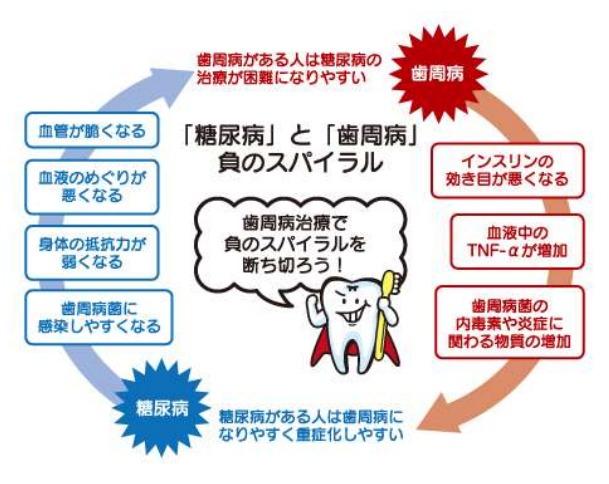 歯周病と糖尿病