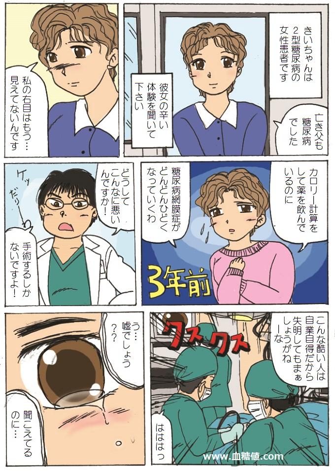 糖尿病が原因で片目の視力を失った女性の漫画