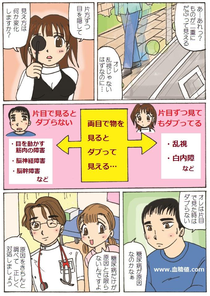 単眼性複視と両眼性複視について説明した漫画