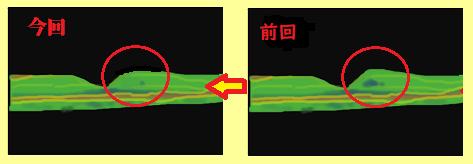黄斑浮腫の変化