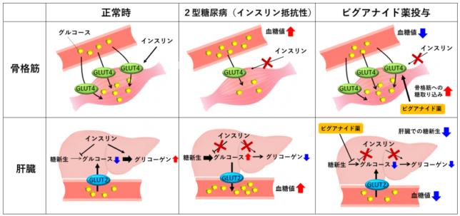 肝臓と筋肉のインスリン抵抗性とメトグルコ