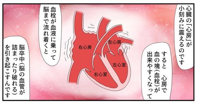 心房細動とはわかりやすく